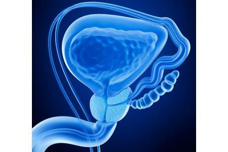 la inflamación de la próstata puede causar ardor en el ano